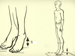 cum să efectuați operațiuni în varicoză)